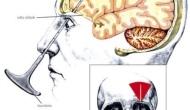 Lobotomía: cuando las atrocidades médicas selegalizan